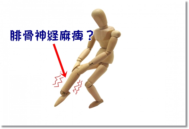 足にしびれが?腓骨神経麻痺?足根管症候群?