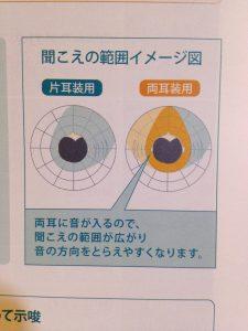 片耳と両耳の補聴器の違い