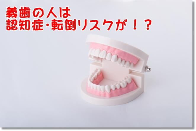 義歯の人は認知症リスクが?運動機能と寿命も変わる?