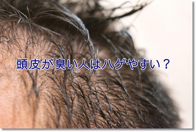 頭皮が臭い人はハゲやすい?脂漏性皮膚炎だとしたら大変!