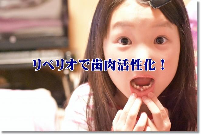 リペリオで歯肉活性化!リペリオの効果と使い方を再確認