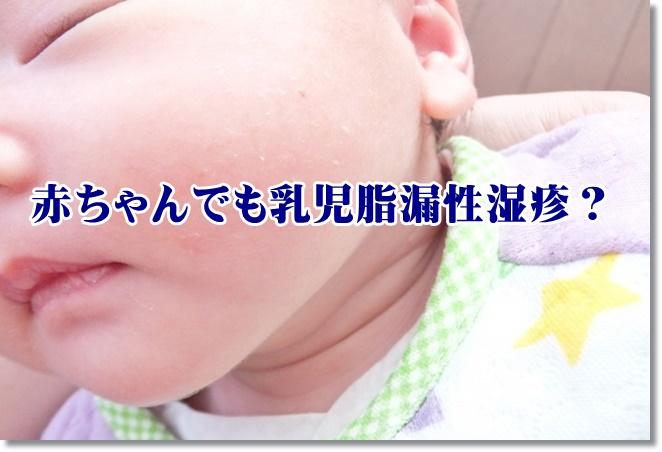 赤ちゃんでも乳児脂漏性湿疹?原因は?予防は?