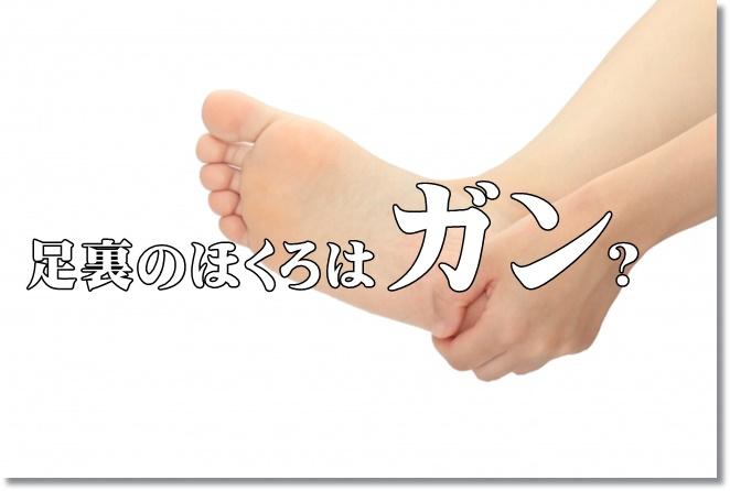 足裏のほくろはガン?除去すべき?予防は?