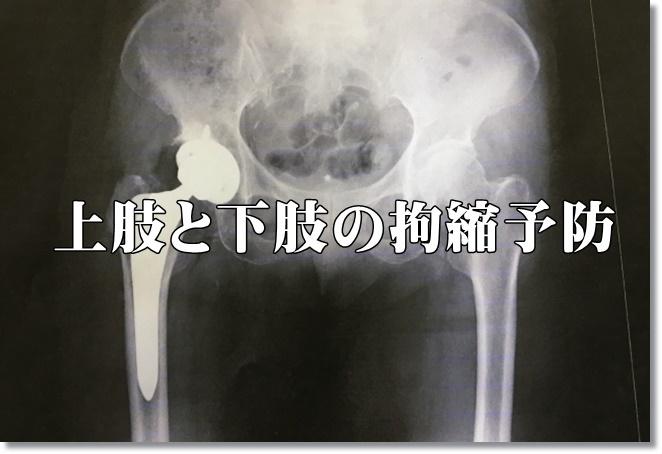 上肢と下肢の拘縮予防に関する配慮点について